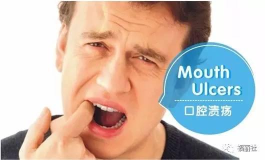 老年人口腔溃疡_老年人口腔溃疡怎么治 老人口腔溃疡如何治疗