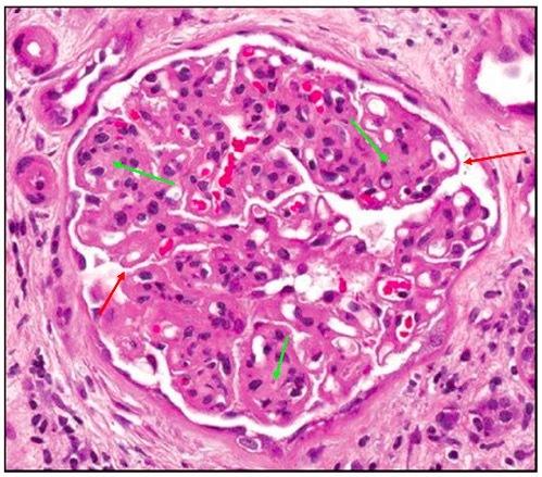 轻度系膜增生性肾炎_病理示肾小球节段轻度细膜增生性病变是什么意思?-轻度系膜增生 ...
