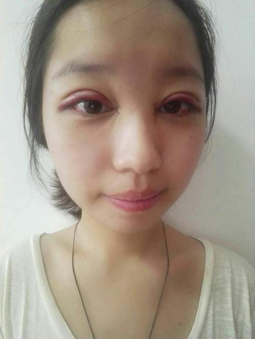 刚刚割完双眼皮之后的样子_做完双眼皮的小伙伴一定要忌口 否则好疼好痒的
