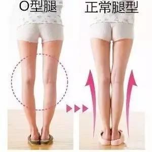 正常女生腿型_完美腿型有四个菱形标志,你的腿及格了吗?