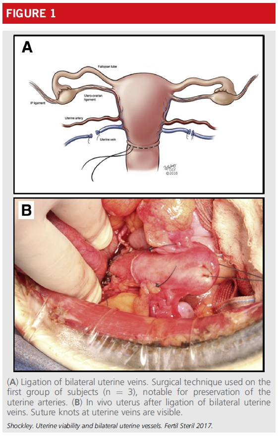 sexfileqvod_所有狒狒术后都恢复了周期性的性相关的皮肤肿胀(cyclical sex skin t