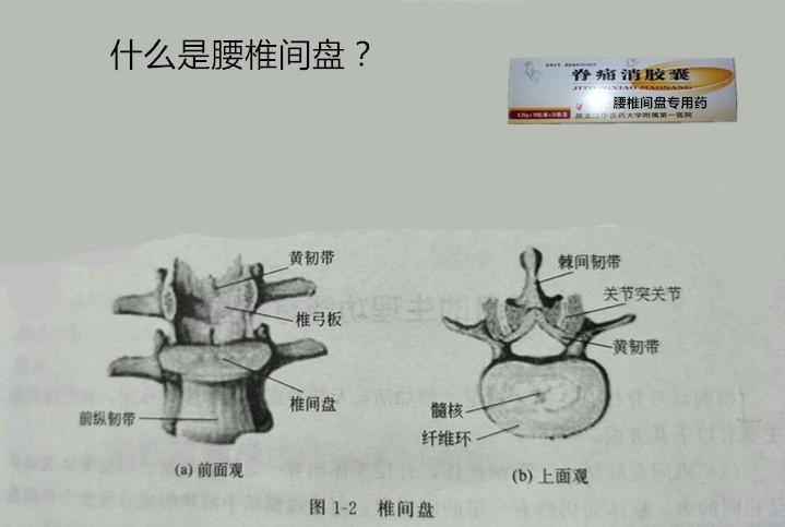腰椎间盘突出的原因_引起腰椎间盘突出症的原因有哪些?