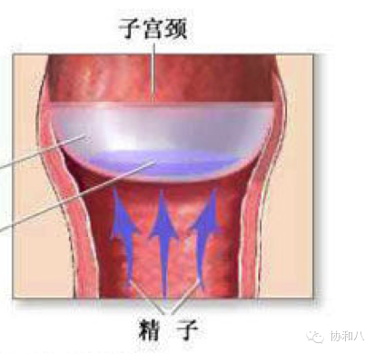 做爱小�9n)�h�_性交后8-12小时取出,过早取出( 8h)可能受孕,过晚取出(>24h)可能刺激