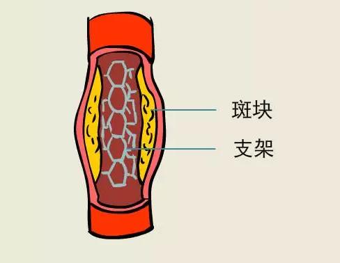 心脏放支架的副作用图片2