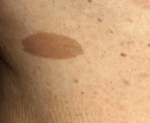 毛细血管破裂出血点_收藏丨我见过最全的皮疹描述图库(非医慎点)