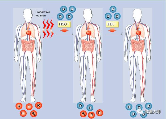干细胞:原来坐轮椅的患者又可以