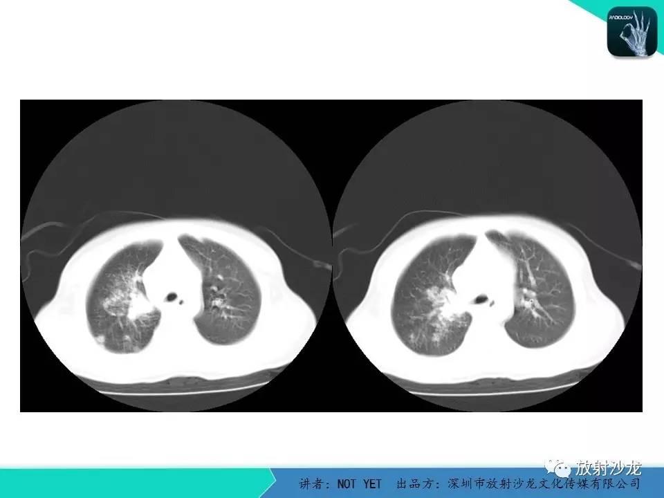 【每日一例 | 427期】原发性肺结核