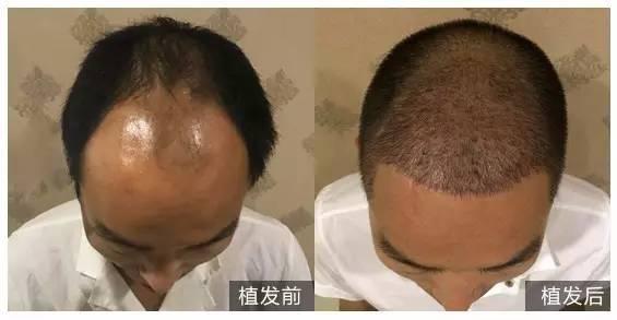 植发后头顶长了一个小包